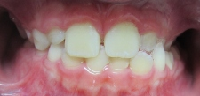Image: Crossbite Orthodontic Treatment