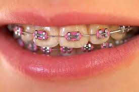 Image of Metal Braces on Person's Teeth
