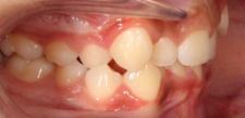 Image - Class 1 Malocclusion