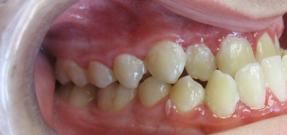 Image: A Class III Occlusion or Underbite