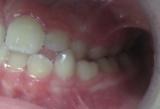 Image: Crossbite Orthodontic Treatment
