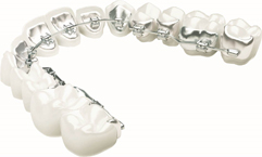 Image of Harmony Braces on Teeth